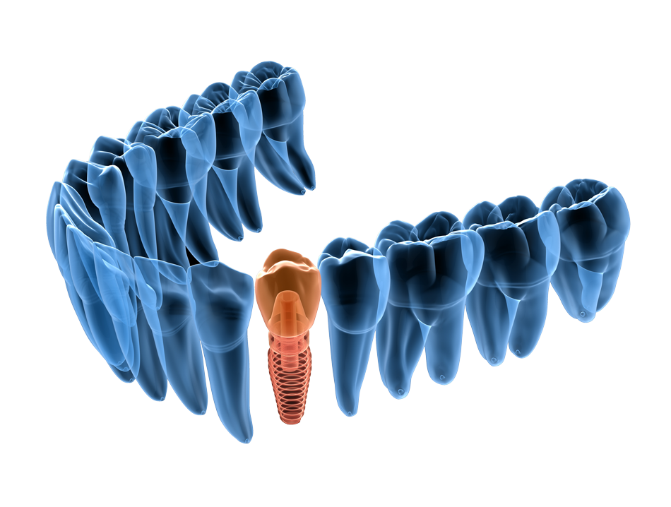 digital dentistry teeth